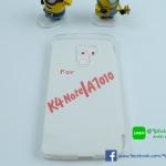 เคส Lenovo K4 Note (A7010) แบบซิลิโคน