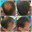 ผงโรยผม HairPRO เท่านั้น จบทุกปัญหาเส้นผม ผมบาง หัวไข่ดาว รอยแสกกว้าง line id 0827956955 thumbnail 7