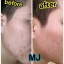 MJ Plus Feel the Difference Miracle Just for Skin หมดปัญหากวนใจ ไร้ฝ้า กระ ผิวกระจ่างใส thumbnail 10
