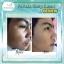 Ambling Perfect Deep Clean แอมบลิงค์ โฟมล้างหน้า สูตร Detox ผิวหน้า เพื่อความสะอาดที่แท้จริง thumbnail 11