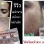 Princess SKIN CARE ครีมหน้าขาว หน้าเงา หน้าเด็ก ปัญหาผิวหน้า PSC เคลียร์ให้ thumbnail 28