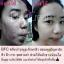 BFC Baby Face Cream Set บีเอฟซี ครีมหน้าใสรักษาสิว thumbnail 18