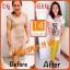 Solie Plus Block&Burn 14 Day Diet โซลี่ พลัส ผลิตภัณฑ์เสริมอาหาร เห็นผลใน 14 วัน thumbnail 25