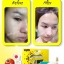 Mini Block Set Skincare by Anya มินิบล็อคเซ็ต สิวหาย ใสกิ๊ก บอกลาปัญหาสิว ผิวขาว ครบเครื่องในหนึ่งเดียว thumbnail 9