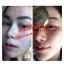 ชุดครีมบล็อคสิว Skincare by Anya thumbnail 11