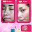Pinky Block Set by Anya พิ้งค์กี้ บล็อค เซ็ต ครีมบล็อคสิว สิวหาย ใสกิ๊ก thumbnail 7