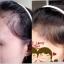 Hairfalless ชุดแชมพูสมุนไพร บัวศรีฟ้า แก้ปัญหาผมร่วง หัวล้าน แค่สระ...ชีวิตก้อเปลี่ยน thumbnail 5