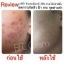 BFC Baby Face Cream Set บีเอฟซี ครีมหน้าใสรักษาสิว thumbnail 16