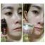 Miracle White night serum by Pcare Skincare เซรั่มเพื่อดูแลปัญหาฝ้า กระ รอยสิว รอยแผลโดยเฉพาะ thumbnail 9