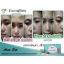 Acne Set by Freshy Face ชุดปราบสิว รักษาสิวทุกชนิด เห็นผลจริง ปลอดภัย ไร้สารอันตราย thumbnail 13