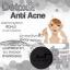Detox & Anti Acne by Amiskincare สบู่ดีท็อกซ์ แอนตี้ แอคเน่ สบู่เอมิดีท็อกซ์สิว สบู่ก้อนดำ ที่จะทำให้คุณลืม คลีนซิ่งกับโฟมล้างหน้า thumbnail 3