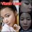 Bee Cute By BlinkBlink serum vitamin leser วิตามินเลเซอร์ เซตฟื้นฟูปรับสภาพผิวหน้าเร่งด่วน thumbnail 9