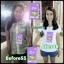 Zolin โซลิน (กล่องม่วง) ผลิตภัณฑ์ลดน้ำหนัก + Detox 2 in 1 ไม่ปวดท้องบิด ไม่ถ่ายเป็นไขมัน thumbnail 34