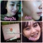 BFC Baby Face Cream Set บีเอฟซี ครีมหน้าใสรักษาสิว thumbnail 19