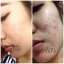 BFC Baby Face Cream Set บีเอฟซี ครีมหน้าใสรักษาสิว thumbnail 17
