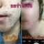 Aura Bright Super Vitamin ออร่าไบร์ท วิตามินเร่งผิวขาว ขาวจริงไม่มโน thumbnail 23
