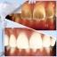 Teeth Cleaning Kit ชุดทำความสะอาดฟัน ทำให้ฟันขาวและรอยยิ้มที่สดใส thumbnail 11
